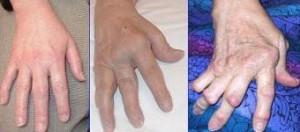 Arthrite_rhumatoide